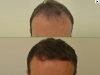 fue_haartransplantation__manner_6