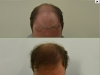 fue_haartransplantation_manner_1