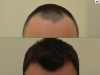 fue_haartransplantation_manner_10