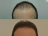 fue_haartransplantation_manner_11
