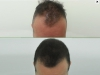 fue_haartransplantation_manner_17