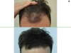 fue_haartransplantation_manner_18