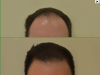 fue_haartransplantation_manner_2