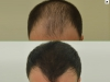 fue_haartransplantation_manner_20