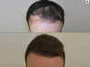 fue_haartransplantation_manner_21