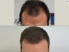 fue_haartransplantation_manner_22