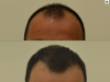 fue_haartransplantation_manner_23