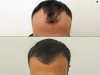 fue_haartransplantation_manner_26