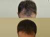 fue_haartransplantation_manner_27