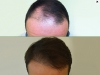 fue_haartransplantation_manner_28