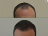 fue_haartransplantation_manner_3