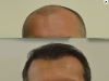 fue_haartransplantation_manner_30