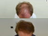 fue_haartransplantation_manner_31