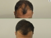 fue_haartransplantation_manner_32