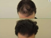 fue_haartransplantation_manner_33