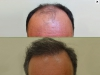 fue_haartransplantation_manner_34