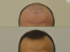 fue_haartransplantation_manner_36