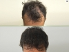 fue_haartransplantation_manner_37
