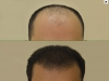 fue_haartransplantation_manner_39