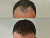 fue_haartransplantation_manner_40