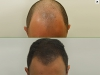 fue_haartransplantation_manner_41