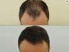 fue_haartransplantation_manner_42