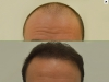 fue_haartransplantation_manner_43