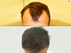 fue_haartransplantation_manner_44