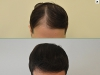 fue_haartransplantation_manner_45