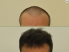 fue_haartransplantation_manner_46