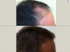 fue_haartransplantation_manner_46_0