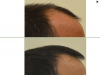 fue_haartransplantation_manner_50