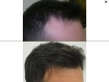 fue_haartransplantation_manner_51