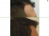fue_haartransplantation_manner_53