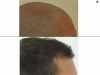 fue_haartransplantation_manner_55