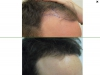 fue_haartransplantation_manner_57