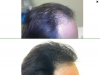 fue_haartransplantation_manner_58