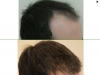 fue_haartransplantation_manner_59