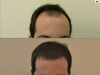 fue_haartransplantation_manner_8