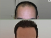 fue_haartransplantation_manner_9